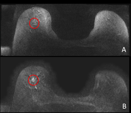 Diffusion Weighted Mri Imaging Of Breast Cancer Axti