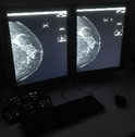 Image quality evaluation test for clinical performance prediction in digital mammography